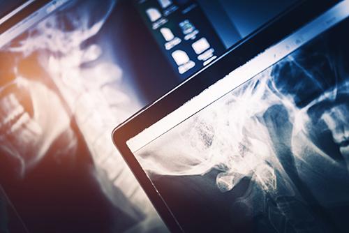 Advancement of Chiropractic Services - Polaris Chiropractic